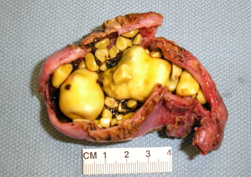 What does a gallstone look like when you pass it